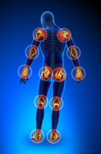Arthritis relieved with acupuncture