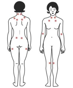 Relieve fibromyalgia with acupuncture
